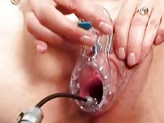 dilettante mother vag exploration by nasty gyn md